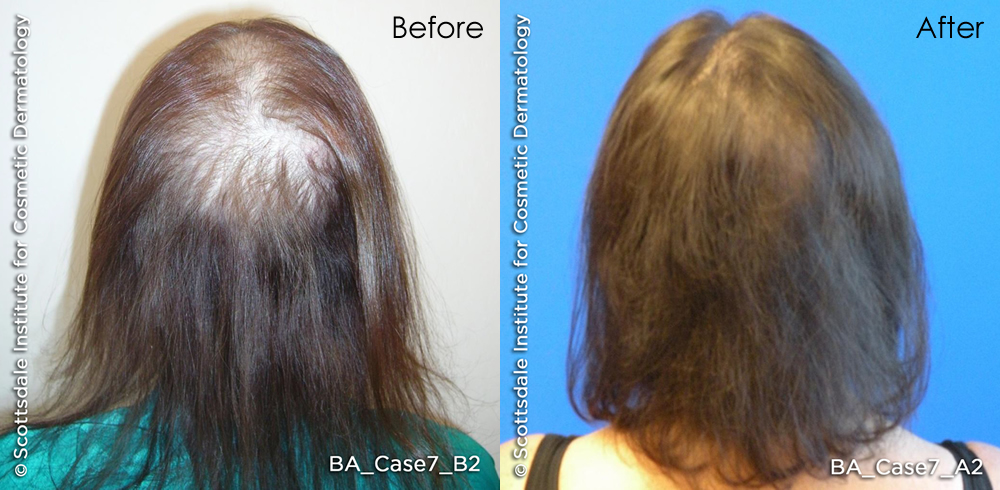 capillus272-before-after