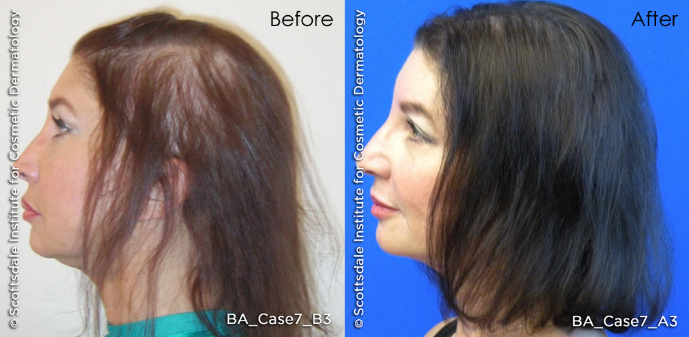 laser-hair-treatment-before-after