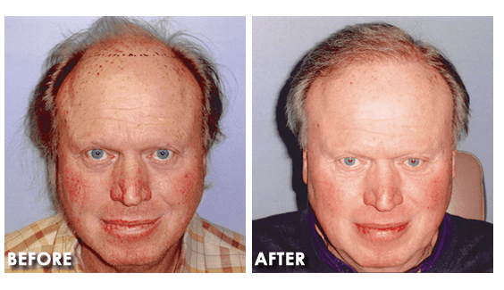 hair-transplant-before-after
